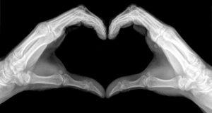 röntgenkéz szív